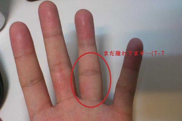 薬指を脱臼